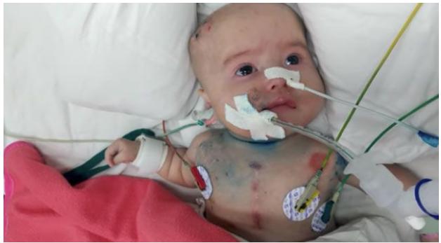 Caroline đã phải sống cùng những ống ven nhiều ngày, và e bé phải thở oxy.