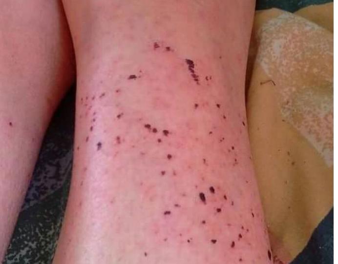 Sinh vật lạ này đã để lại rất nhiều lỗ trên chân cô ấy chỉ sau vài phút
